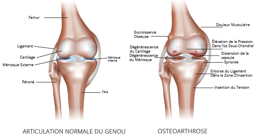 Osteoarthritis-FR--new